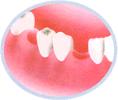 歯の抜けた状態