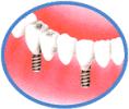 人口の歯を被せた状態