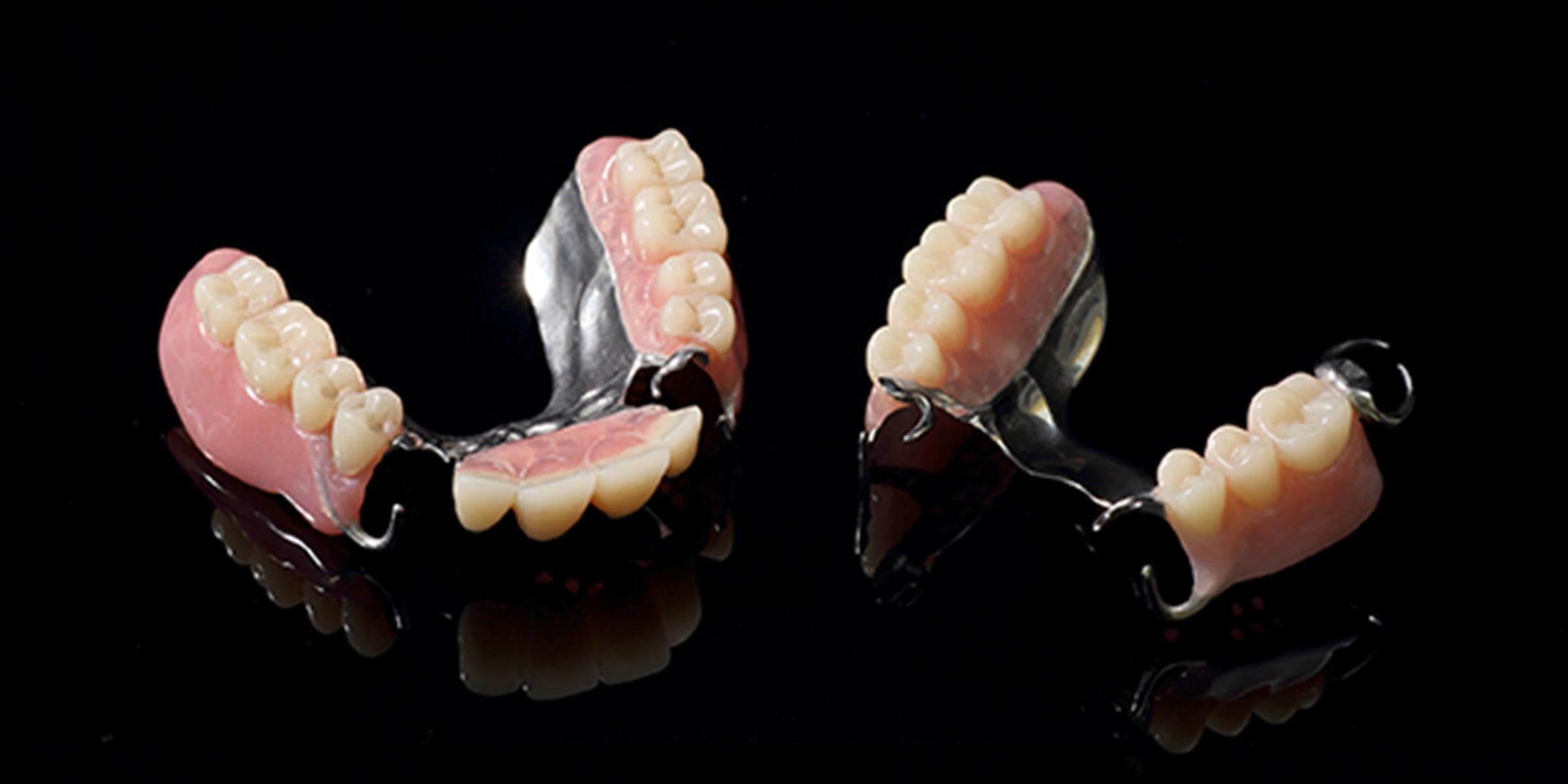 金属床部分入れ歯